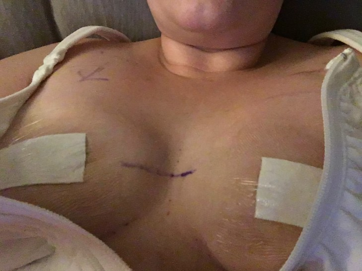 Right after my mastectomy prior to getting the bandages off.